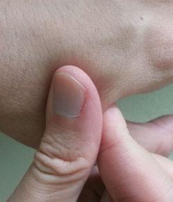 skin elasticity test